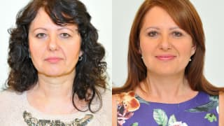 Photo - Facelift, necklift, eyelid adjustment - Alena