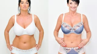 Photo - SlimLipo Laser Liposuction - Juliana