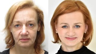 Photo - Facelift - Jitka