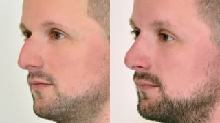 Photo - Rhinoplasty - Jakub
