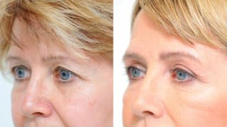 Photo - Eyelid surgery - Zdena