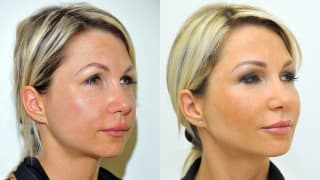 Photo - Facial slimming, contouring - Michaela
