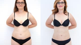 Photo - SlimLipo Laser Liposuction - Eva