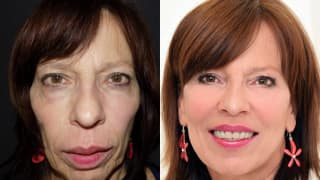 Photo - Rejuvenation, fillings - Ludmila