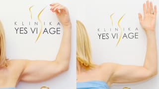 Photo - SlimLipo Laser Liposuction - Monika