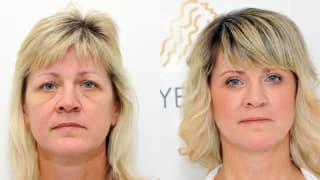 Photo - Eyelid surgery - Jana