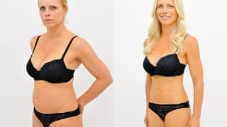 Photo - SlimLipo Laser Liposuction- Jana