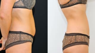 Photo - SlimLipo Laser Liposuction, Cryolipolysis - Jolana