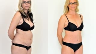Photo - Abdominoplasty - Henrieta