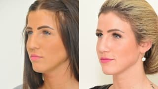 Photo - Rhinoplasty - Denisa