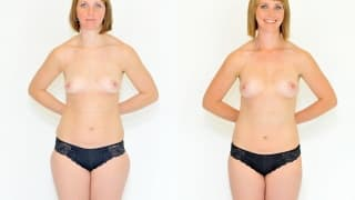 Photo - SlimLipo Laser Liposuction, Lipotransfer to the Breast - Lenka