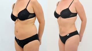 Photo - SlimLipo Laser Liposuction - Emilia