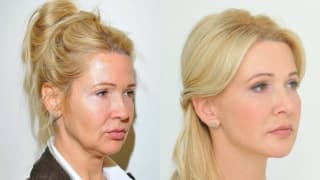Photo - Thread lifting, facelift - Lenka