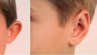 Plastic surgery of ears