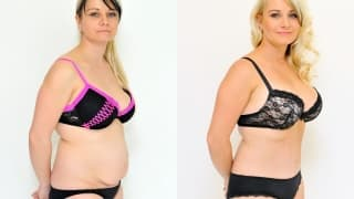 Photo - Abdominoplasty - Jarmila