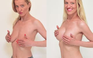 Breast up-lift