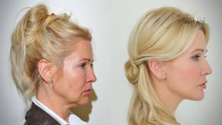 Thread lifting, facelift - Lenka
