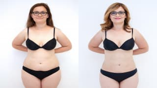 SlimLipo Laser Liposuction - Eva
