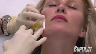 Plazmalifting rejuvenation - Simona Krainova at YES VISAGE Clinic