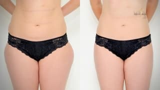 Lipotransfer - Fat transfer at YES VISAGE Clinic