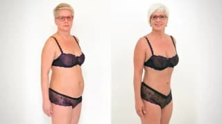 Mrs. Zdena on Laser SlimLipo Liposuction