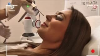 Painless laser rejuvenation at YES VISAGE Clinic