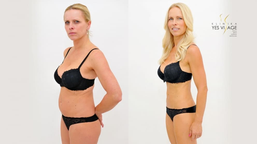 SlimLipo Laser Liposuction